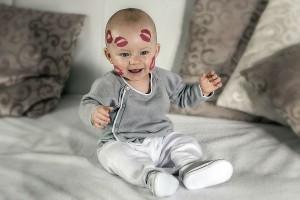 赤ちゃんの『イチゴ状血管腫』。心配なママはどうしてる!?